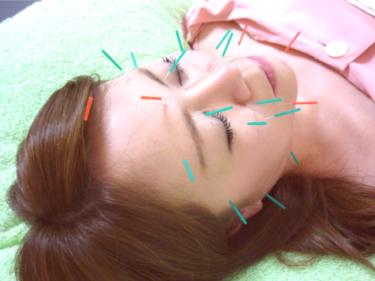 業界初!美容鍼の進化形、麗華鍼が誕生