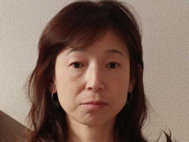 美容鍼・麗華鍼①写真あり