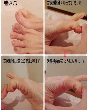 「巻き爪」②