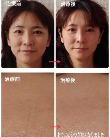 麗華鍼で乾燥肌が改善(〃艸〃)