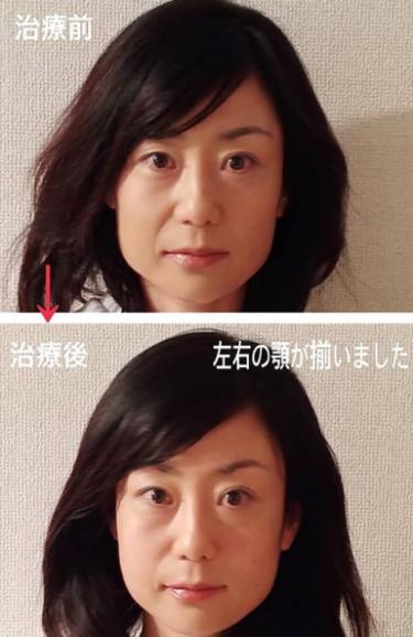 「顔バランス&小顔矯正」キャンペーーン中!