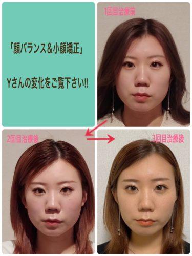 「顔バランス矯正&小顔」経過写真