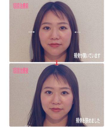 頬骨の幅を狭めました👧「小顔」
