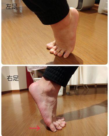 足の裏の痛み🐾