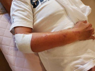 「肘脱臼」と「手首骨折&肘脱臼」の患者さん