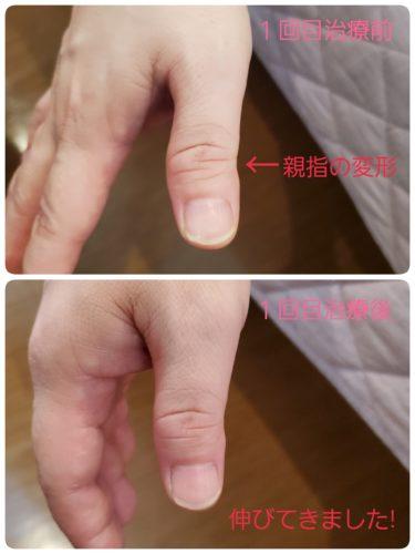 「指の変形とヘパーデン結節」