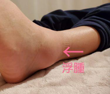 「パンパンに腫れた足首捻挫」1回でOK