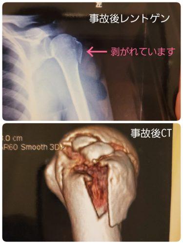 「凄まじい剥離骨折の追加写真」