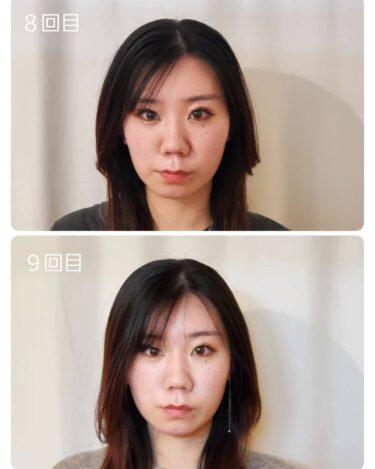 「顔バランス矯正&小顔」を続けた結果、こんなにお顔が小さくなりました (ノ^∇^)ノ