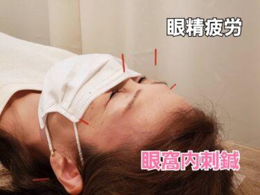 眼精疲労には目の鍼、「眼窩内刺鍼」がお勧めです🎵