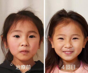 子供の顔の歪み矯正